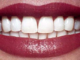 Vrije prijzen tandarts doen premies stijgen