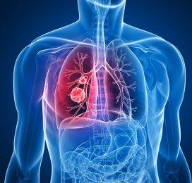 Zorgverzekeraars regelen duur longkankermedicijn