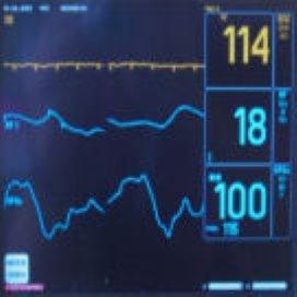Fouten ziekenhuizen eisen 1700 levens