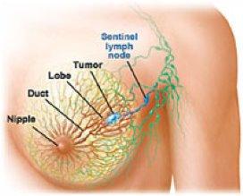 'Massage tegen borstkanker is onzin'