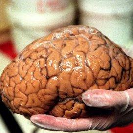 Nieuw academisch centrum voor epileptologie