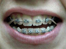 Orthodontisten maken bezwaar tegen tariefsverlaging