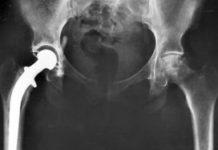 IGZ laakt kwaliteitscontrole implantaten