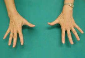 Groot tekort aan handchirurgen