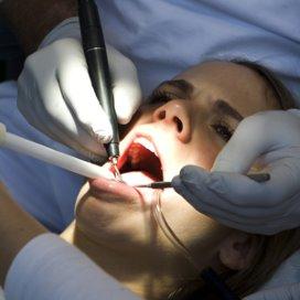 ANT stapt uit overleg tandartstarieven