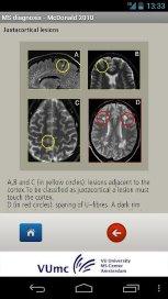 Neuroloog ontwikkelt App voor diagnose MS
