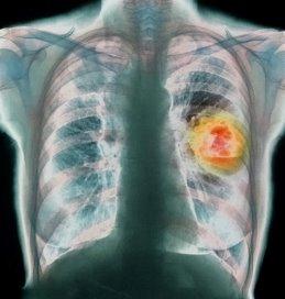 kankerfotolia400.jpg