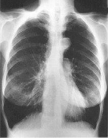 Man/vrouw verschil COPD verdwenen