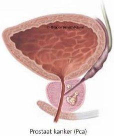 Prostaatkankerscreening toch zinvol bij jonge ouderen