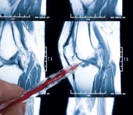 Prostaatkanker-iStock-400.jpg
