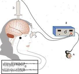 Effect elektroconvulsietherapie voorspelbaar met hersenscan