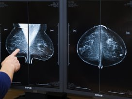 'Eenderde ziekenhuizen scoort onvoldoende op borstkankerzorg'