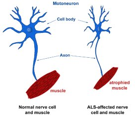 St Radboud stopt met ALS-diagnostiek