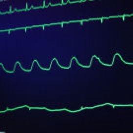 Scheperziekenhuis werkt samen met Duitse hartkliniek