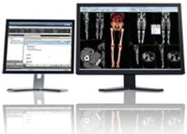 Carestream presenteert nieuw pakket met 3D-technieken