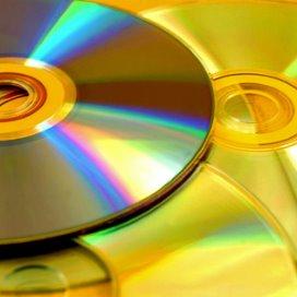Veel ziekenhuizen werken nog met cd's en dvd's voor de uitwisseling van beeldmateriaal.