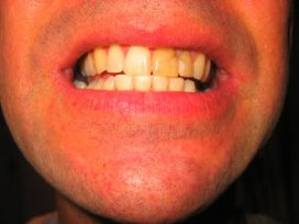 CBP wil tanden laten zien