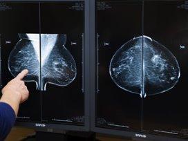 Verbeterde registratie borstkankerzorg start per 2011