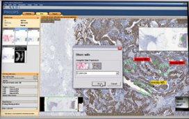 Philips gebruikt kennis digitale beeldanalyse Dako