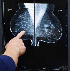 Interactieve keuzehulp voor borstkankerpatiënten