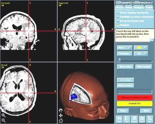 neuronavigatie