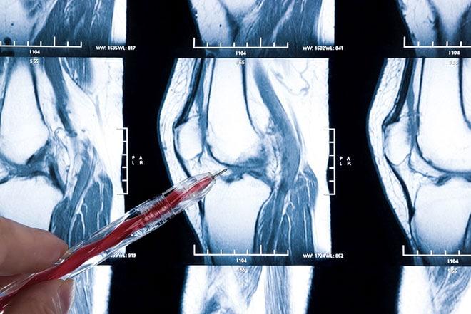 onnodige meniscusoperatie